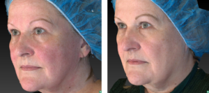 A Patient with Rosacea is treated with Vivace