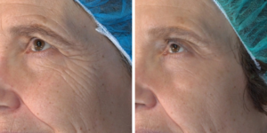 Severe Wrinkles Treated with Vivace