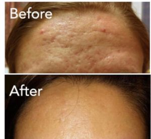 Icepick Acne treated with Vivace