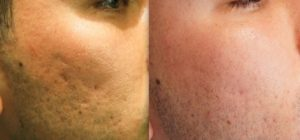Male Acne Treated with Vivace